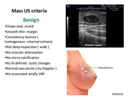 Fibrocystic breast changes wikipedia jpg 638x479